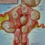 Les fibromes utérins: ces toiles d'araignée de l'utérus