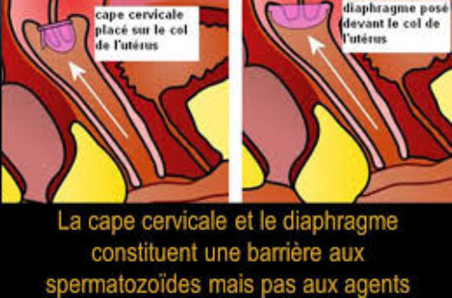 Article : Un jour, une contraception : les autres méthodes rares : la cape, le diaphragme, le patch et l'anneau vaginal